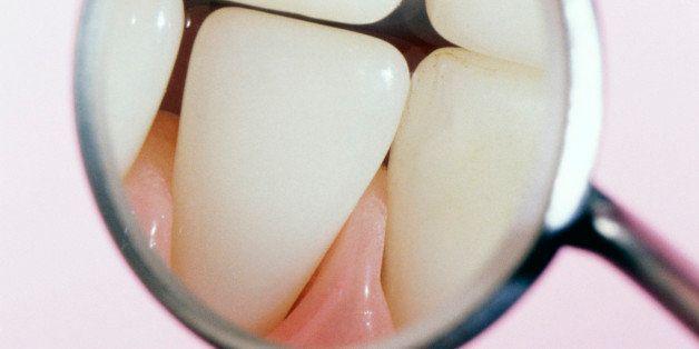 Ако претерувате со овој популарен пијалок може да ги загубите вашите заби