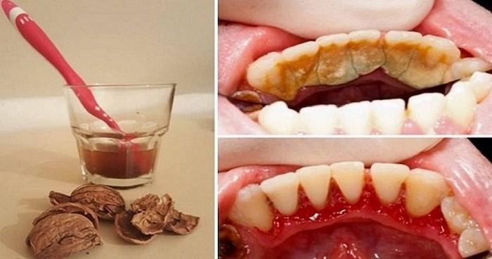 Каменецот на забите веднаш ќе исчезне – нема веќе да одите на стоматолог